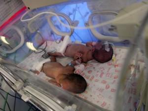 Due gemelle nate da una famiglia davvero speciale